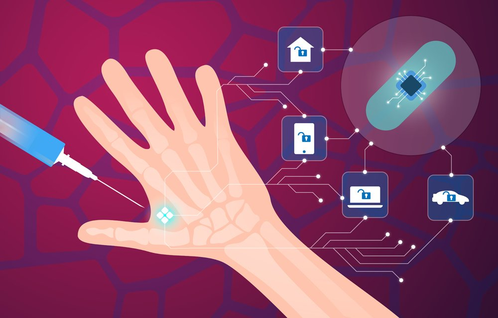 Human microchip implant in hand(graphicwithart)s