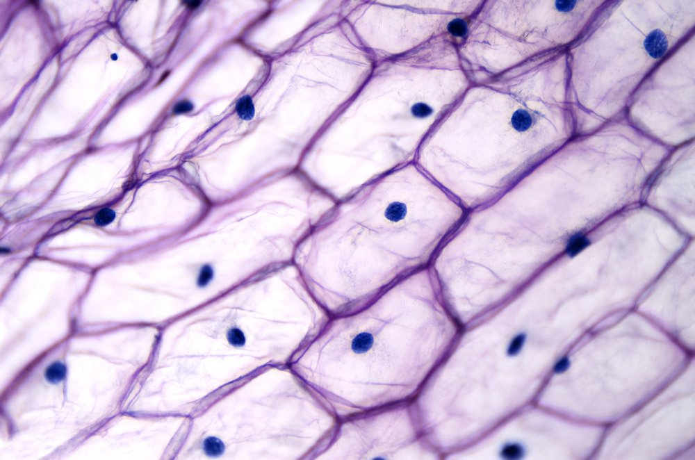 Onion epidermis with large cells under light microscope(Peter Hermes Furian)s