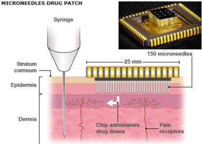 Transdermal microneedles