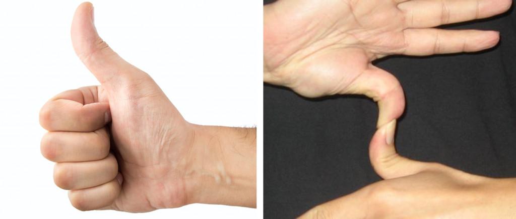 (No Hitchhiker's thumb (dominant) vs Hitchhiker's thumb (recessive)