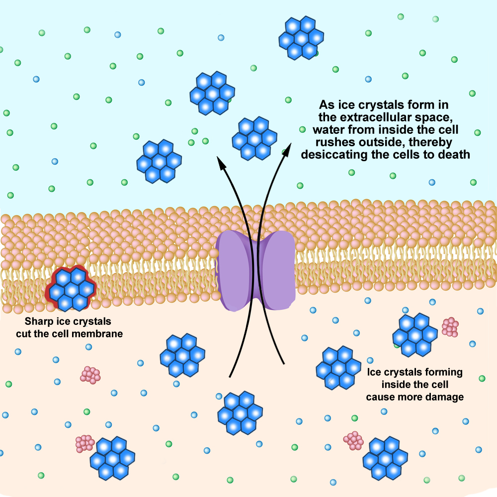 Ionic,Basis,Of,Resting,Membrane,Potential, CELL-IMAGE-DEPICTING-DAMAGE-FROM-ICE-1.jpg