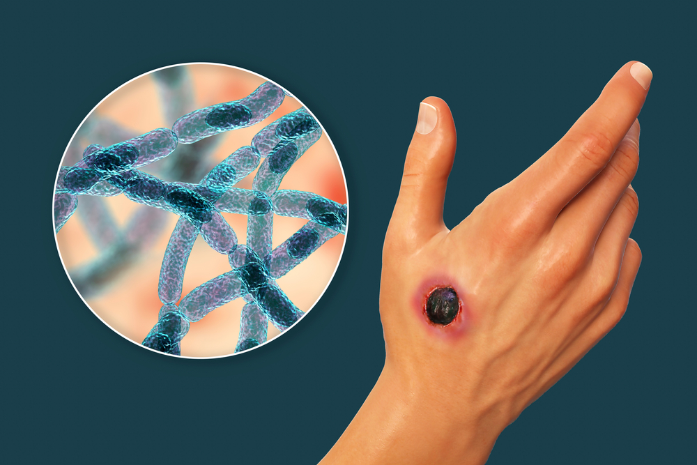 Cutaneous,Anthrax,,The,Most,Common,Form,Of,Anthrax.,3d,Illustration