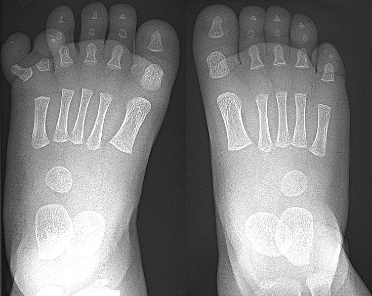 X-ray of feet in polydactyly