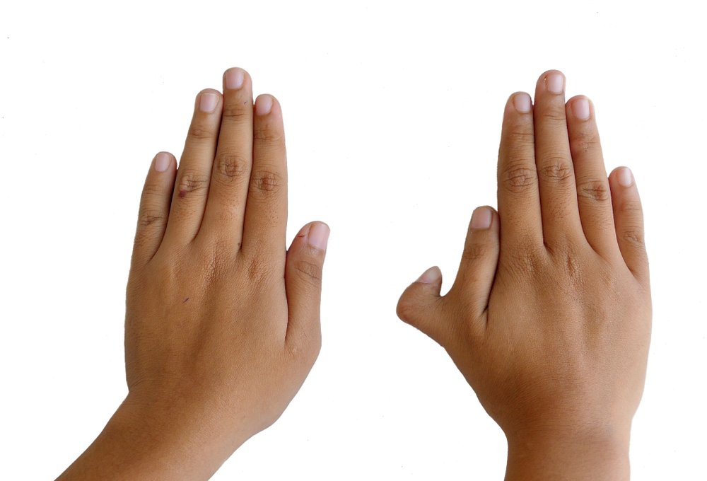 Photo,Of,Polydactyly,On,Human;,Rare,Abnormal,Characteristic,Causes,By