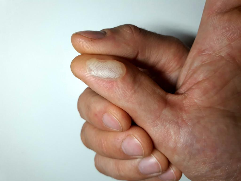 swollen-callus-on-the-hand-callus-bladder_t20_RJA8LQ