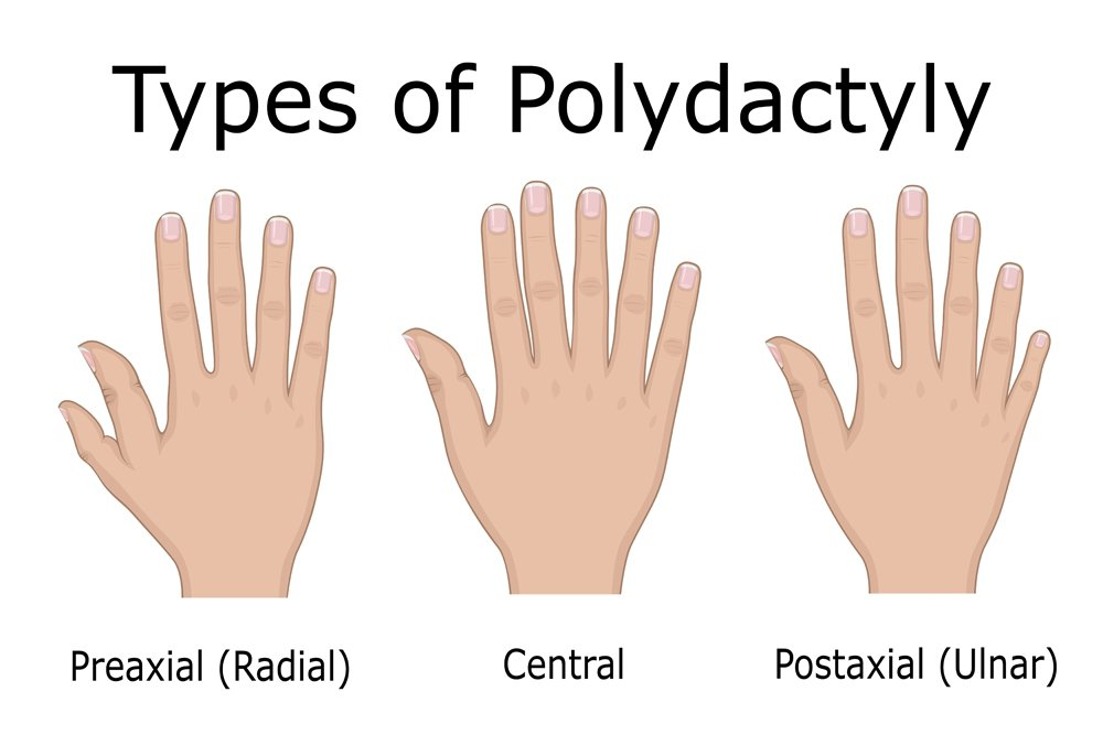 Illustration of three types of Polydactyly, such as Preaxial, Central and Postaxial