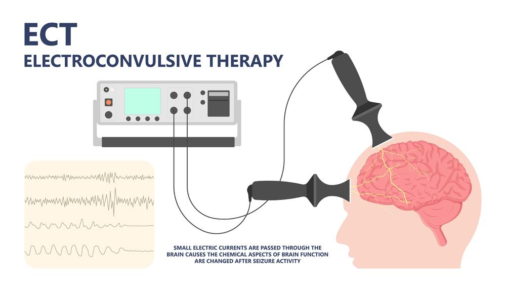 ECT treat MDD Major TMS electric current brain mental health mania bipolar loss Physical head EEG activity signal severe OCD therapist shock deep anxiety Post disease emotional Stigma