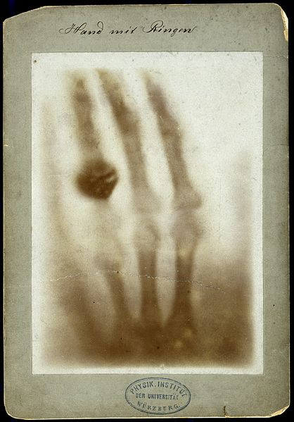 X-ray of the bones of a hand with a ring on one finger Wellcome